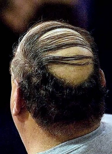 Fear of Being HAGE - the Mystery of Barcode Hair | IroMegane